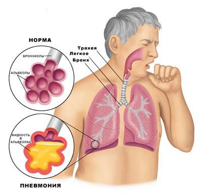 Жидкость в альвеолах