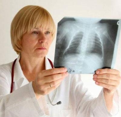 Рентгеновый снимок