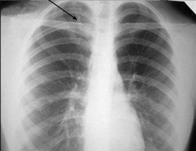Очаговая пневмония на рендгеновском снимке