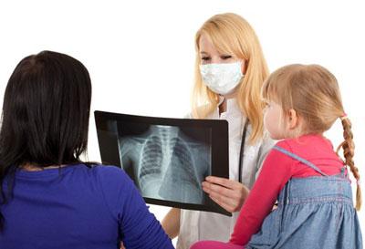 рентген при прневмонии