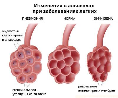 Изменения в легких при воспалении