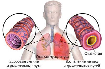 Пневмония и отек легкого: предпосылки и профилактика