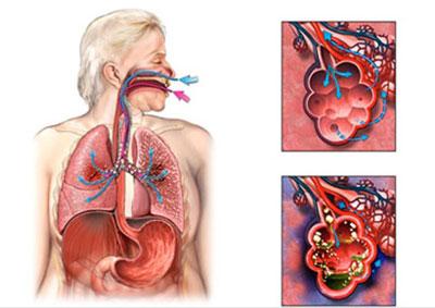 Бактериальное воспаление