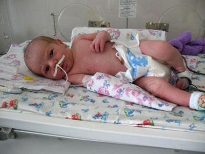 Сколько лечится пневмония у новорожденного