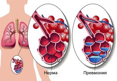 Поражение альвеол
