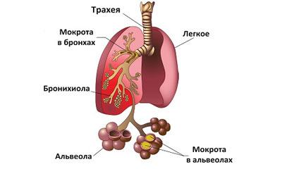 мокроты при пневмонии