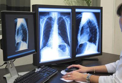 компьютерная томография лёгких