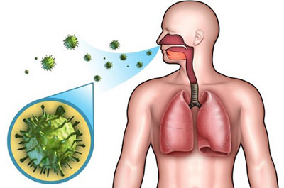 Заражение пневмонией