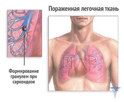 поражение легких саркоидозом