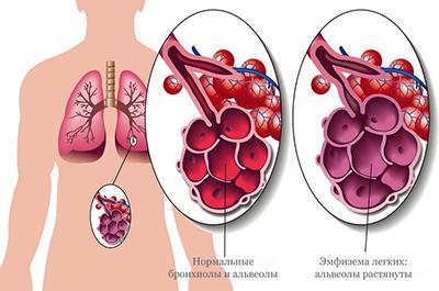 рисунок болезни легких