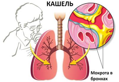картинка: кашель и мокрота