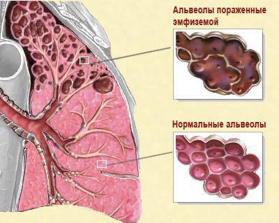 Схема легких при эмфиземе