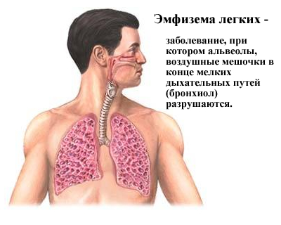 Понятие эмфиземы легких