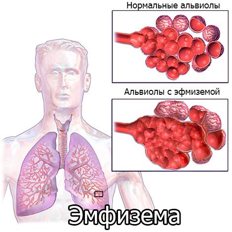 Центрилобулярная эмфизема легких: что это такое?