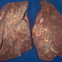 Что нужно знать про саркоидоз легких?