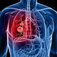 Что такое фибринозный плеврит?